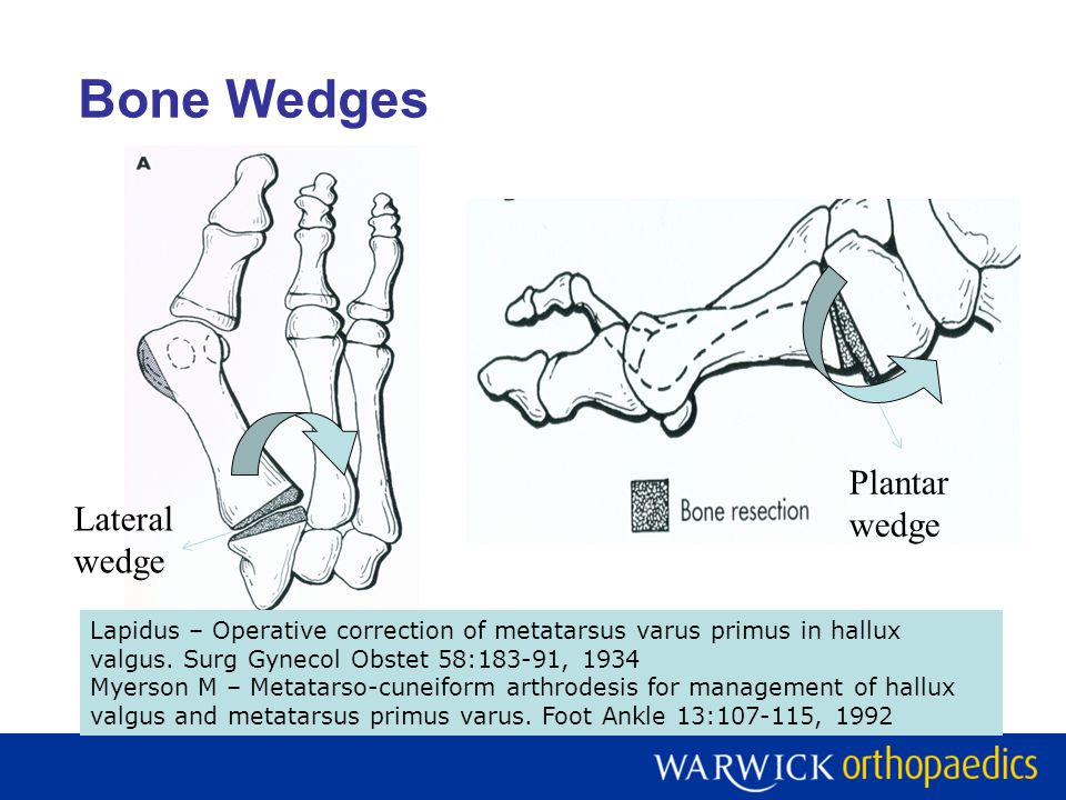 Bone Wedges Plantar wedge Lateral wedge