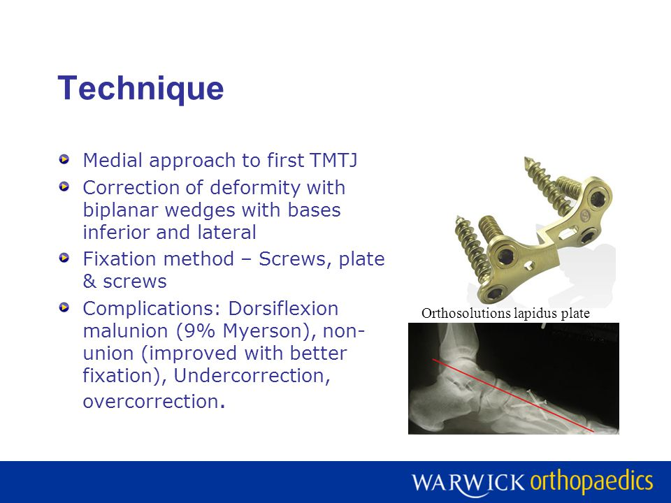 Technique Medial approach to first TMTJ