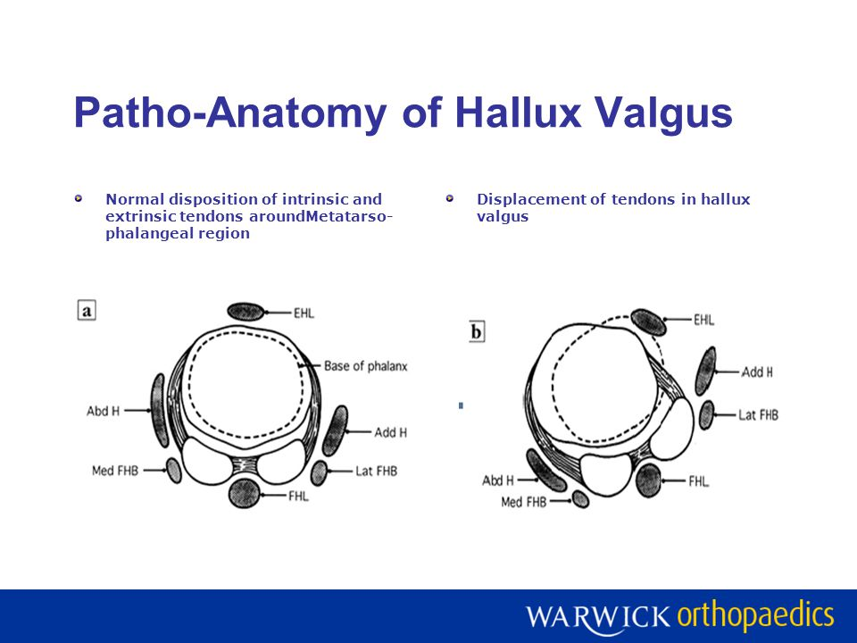 Patho-Anatomy of Hallux Valgus