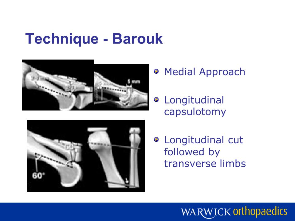 Technique - Barouk Medial Approach Longitudinal capsulotomy
