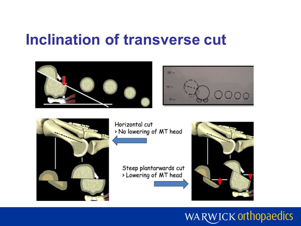 Inclination of transverse cut