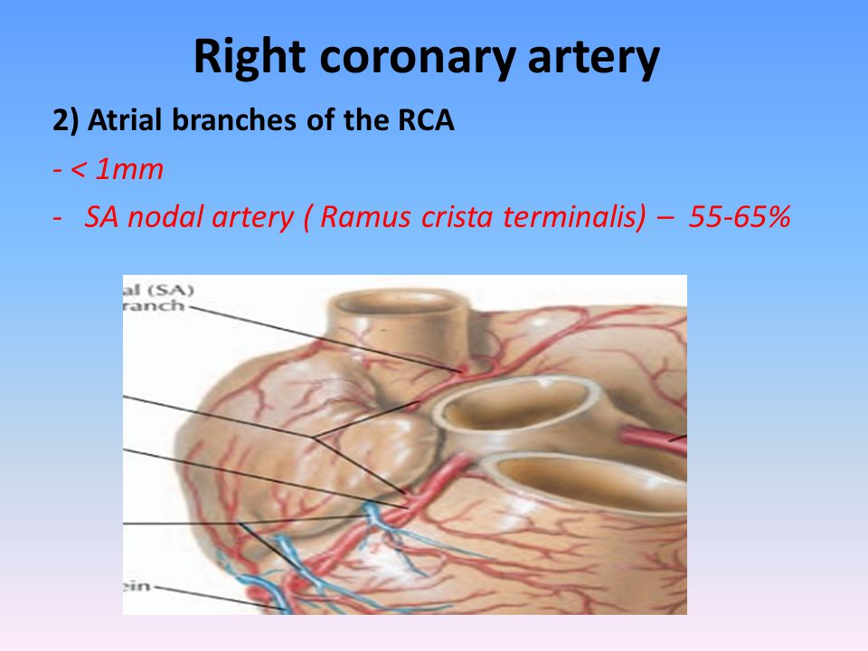 Right coronary artery 2) Atrial branches of the RCA - < 1mm