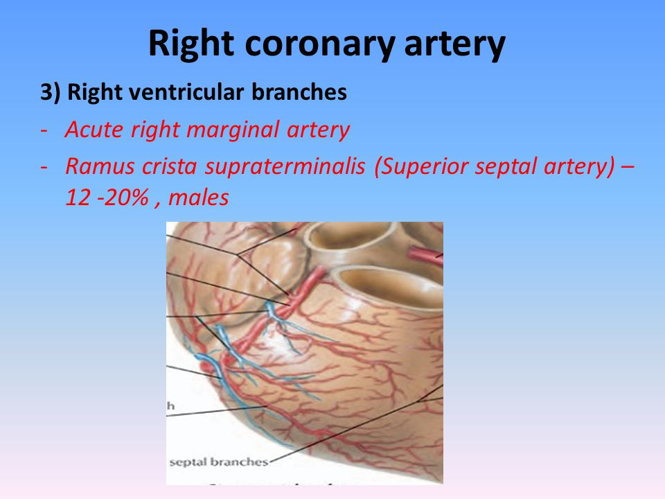 Right coronary artery 3) Right ventricular branches