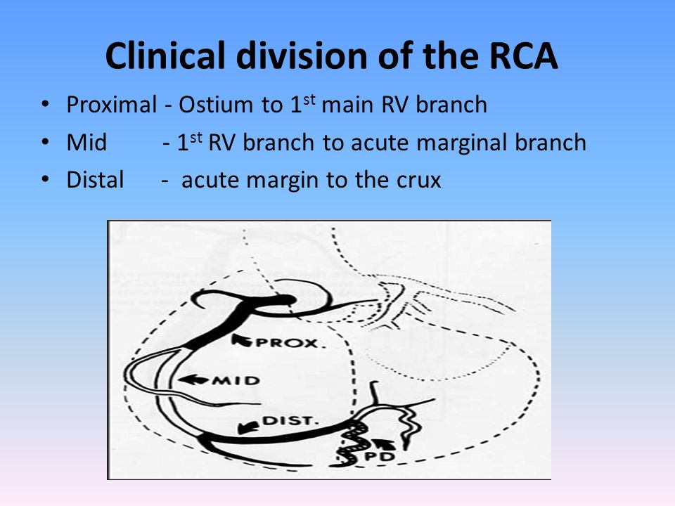 Clinical division of the RCA