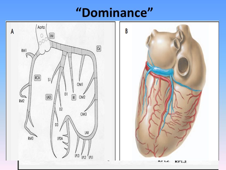 Dominance A misnomer giving rise to PDA, at least 1 PLV & AV nodal A