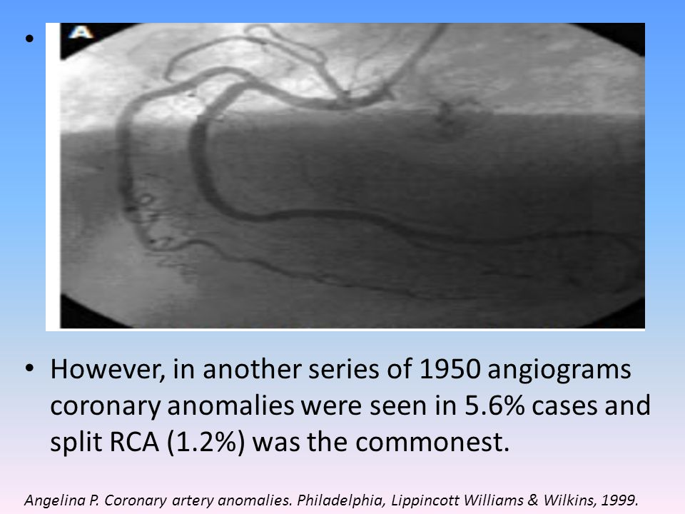 The most common coronary variation (Cleveland Clinic-1,26,000 patients) was separate ostia for LAD & LCX – 0.41% and 2nd commonest was LCX from RCS / RCA – 0.37%