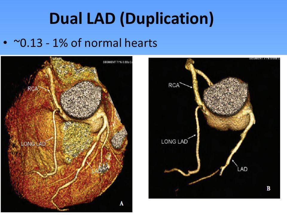 Dual LAD (Duplication)