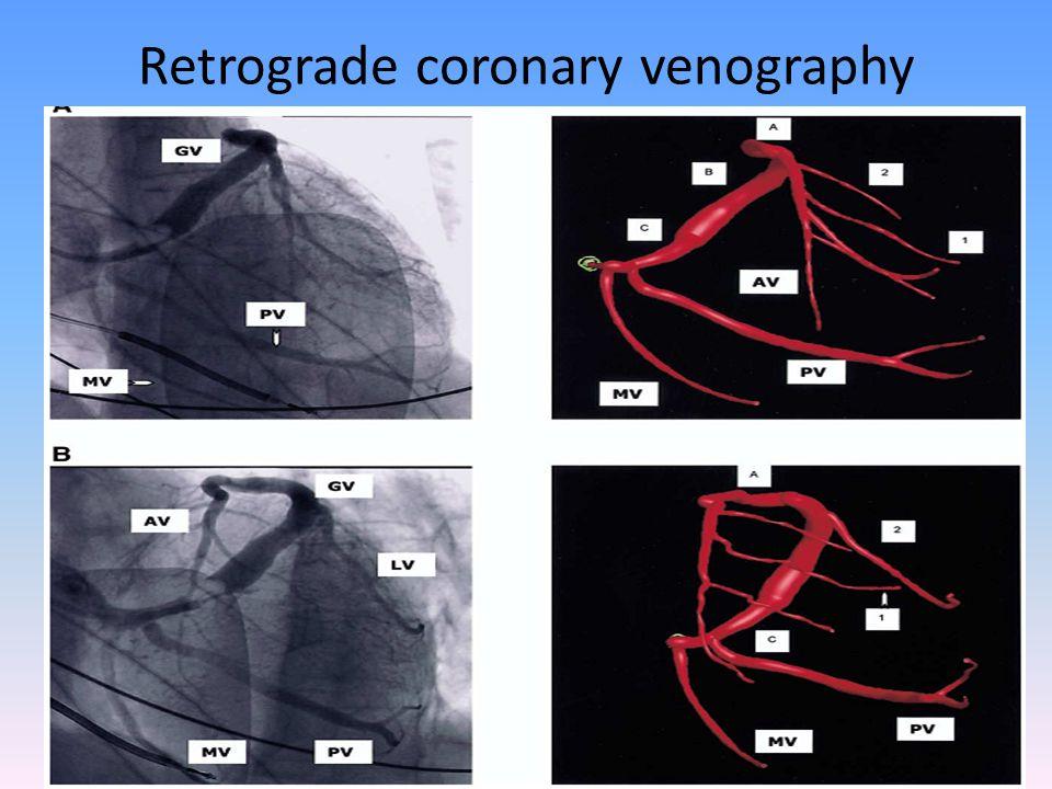 Retrograde coronary venography