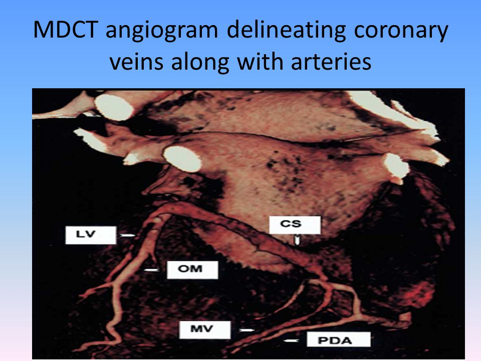 MDCT angiogram delineating coronary veins along with arteries