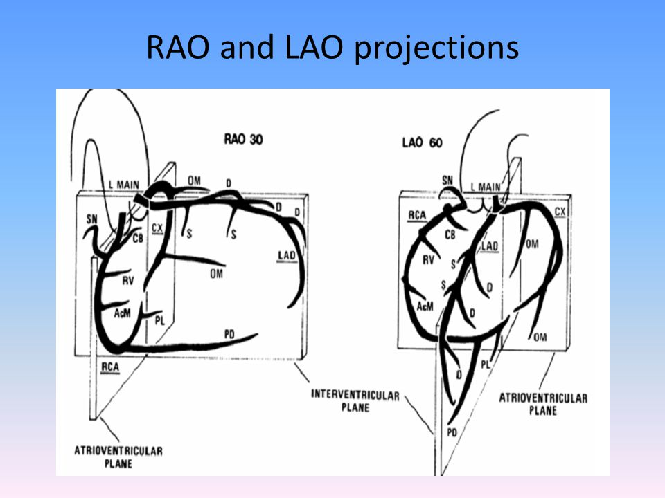 RAO and LAO projections