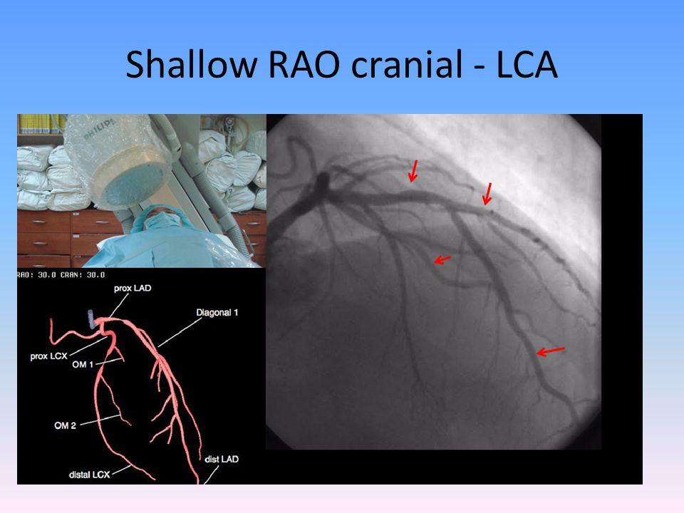 Shallow RAO cranial - LCA