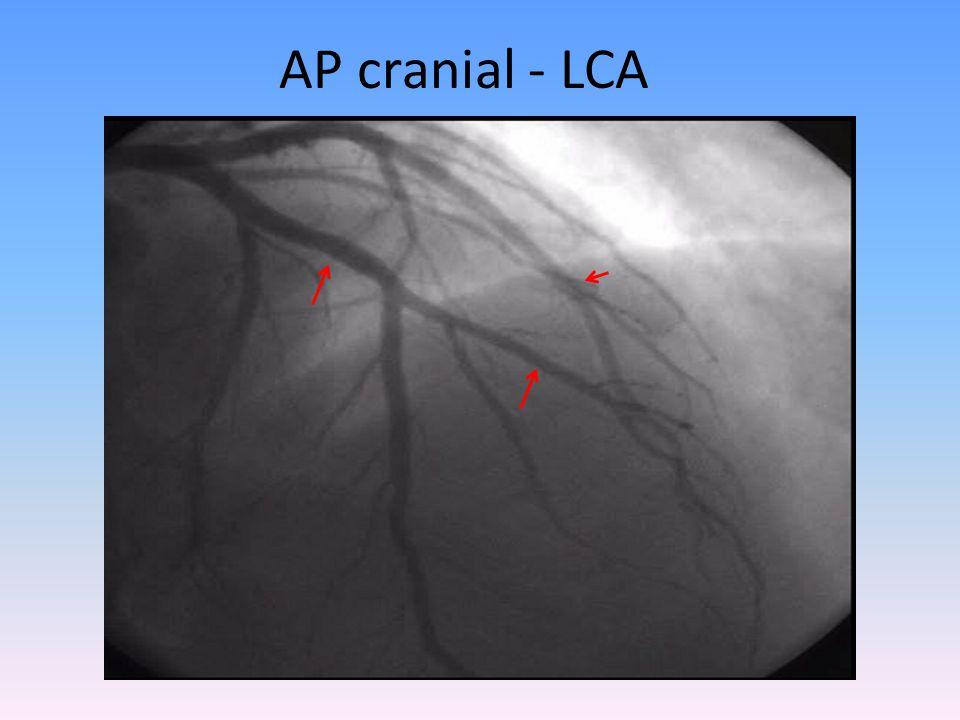 AP cranial - LCA