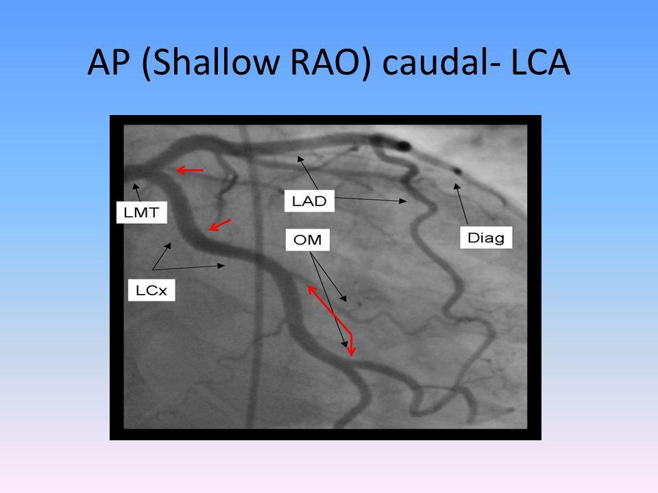 AP (Shallow RAO) caudal- LCA