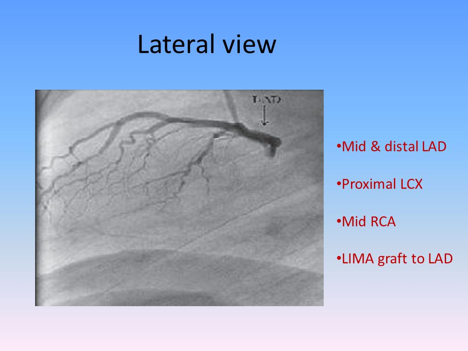Lateral view Mid & distal LAD Proximal LCX Mid RCA LIMA graft to LAD