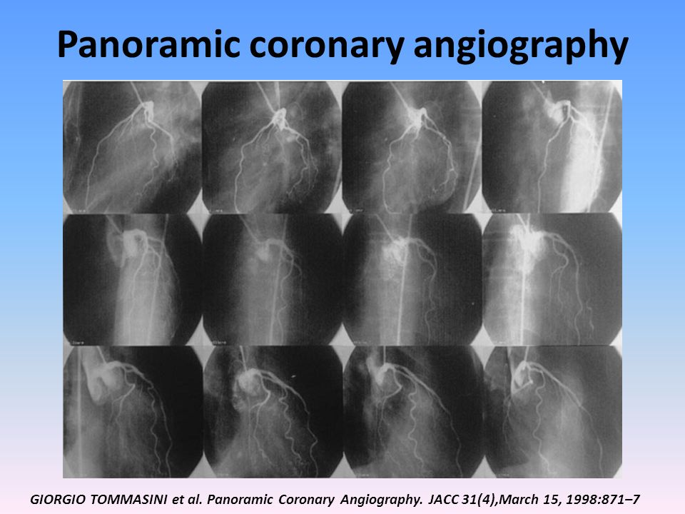 Panoramic coronary angiography