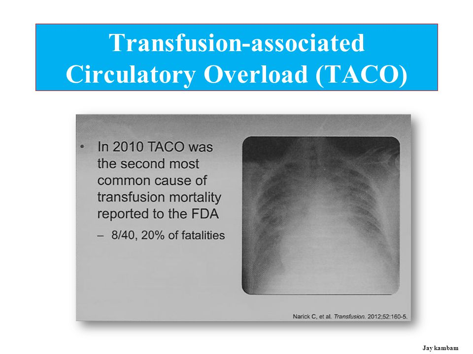 Transfusion-associated Circulatory Overload (TACO)
