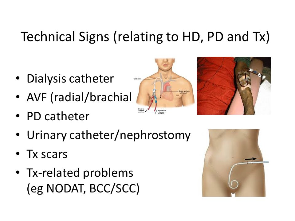 Technical Signs (relating to HD, PD and Tx)