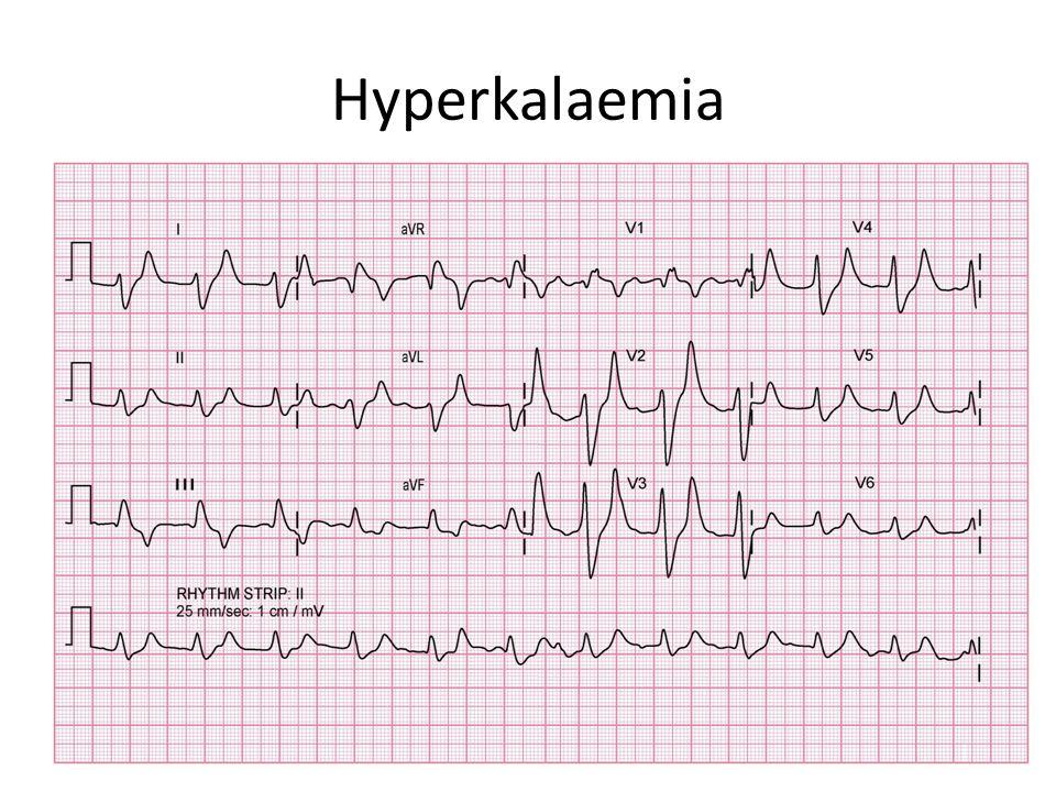 Hyperkalaemia
