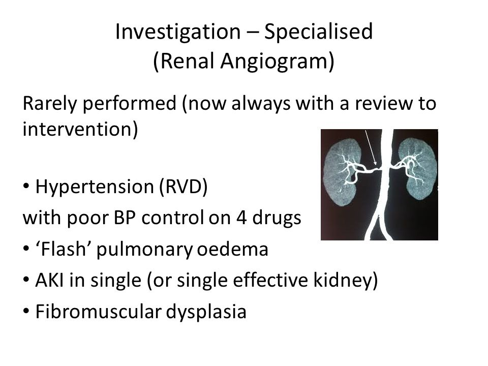 Investigation – Specialised (Renal Angiogram)