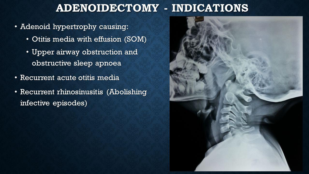 Adenoidectomy - Indications