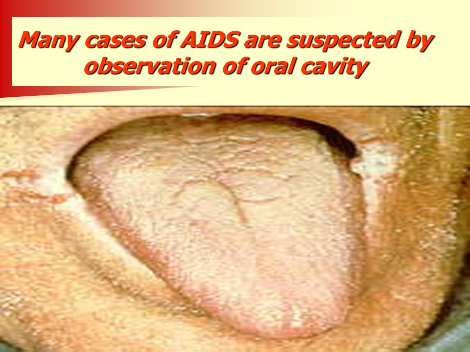 Many cases of AIDS are suspected by observation of oral cavity