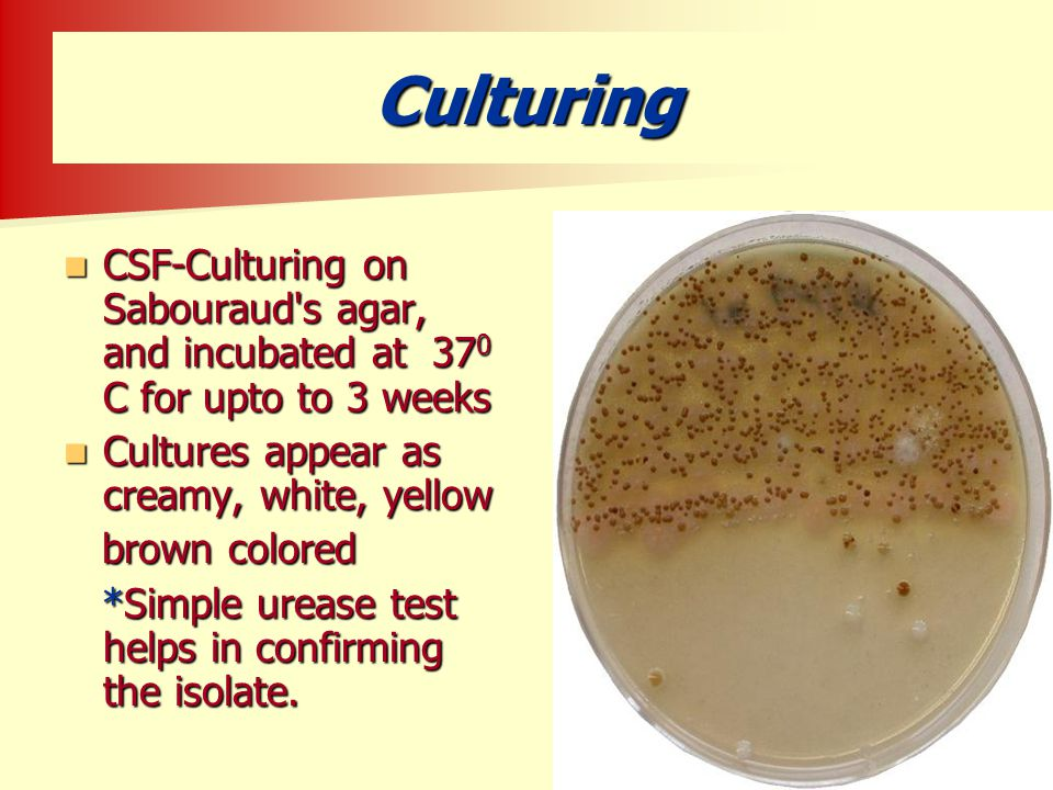 Culturing CSF-Culturing on Sabouraud s agar, and incubated at 370 C for upto to 3 weeks. Cultures appear as creamy, white, yellow.