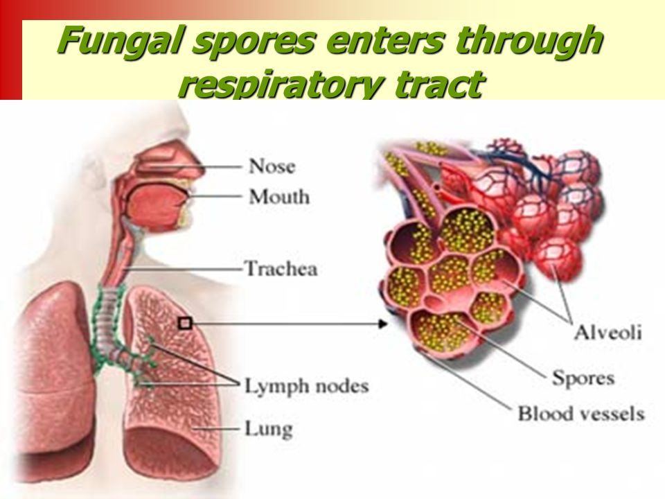 Fungal spores enters through respiratory tract