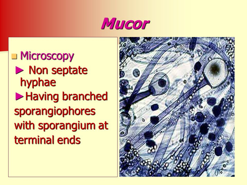 Mucor Microscopy ► Non septate hyphae ►Having branched sporangiophores