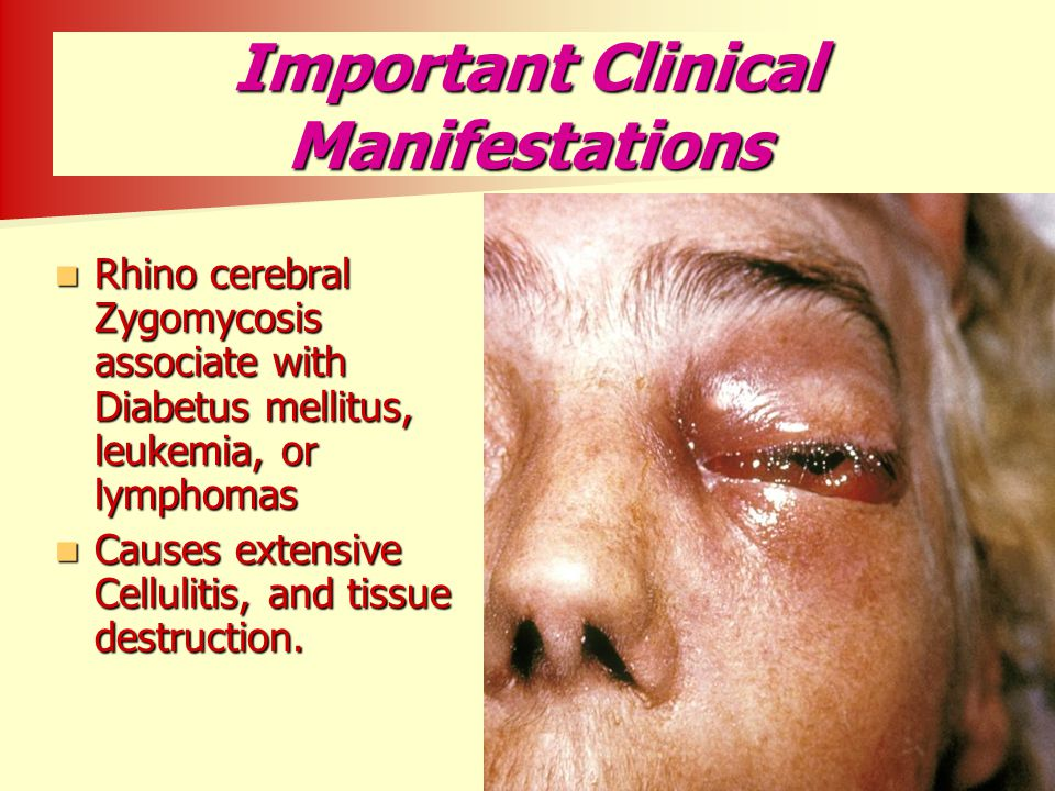 Important Clinical Manifestations