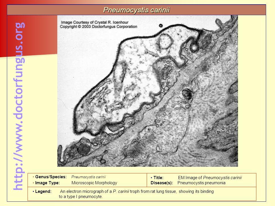 http://www.doctorfungus.org Pneumocystis carinii