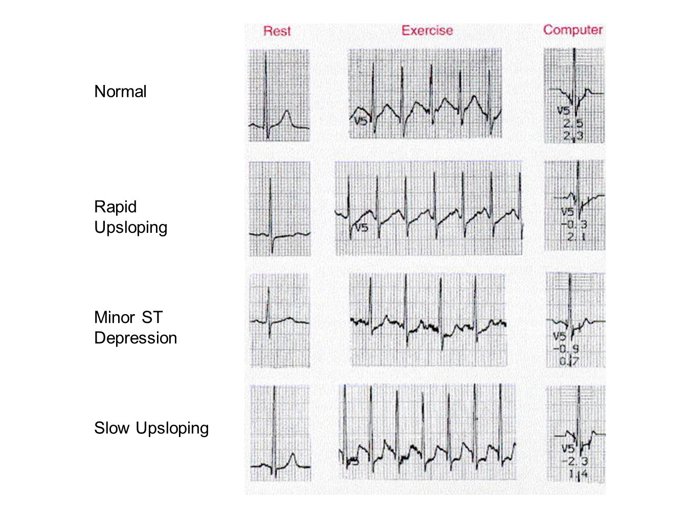 Normal Rapid Upsloping Minor ST Depression Slow Upsloping