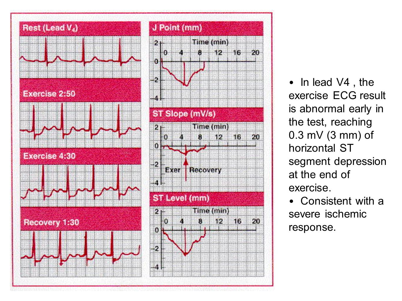 In lead V4 , the exercise ECG result is abnormal early in the test, reaching 0.3 mV (3 mm) of horizontal ST segment depression at the end of exercise.
