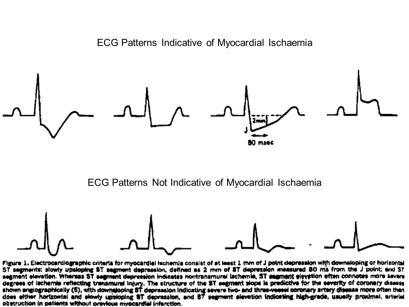 ECG Patterns Indicative of Myocardial Ischaemia
