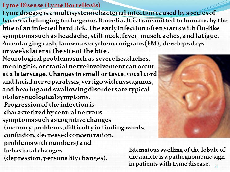 Lyme Disease (Lyme Borreliosis)