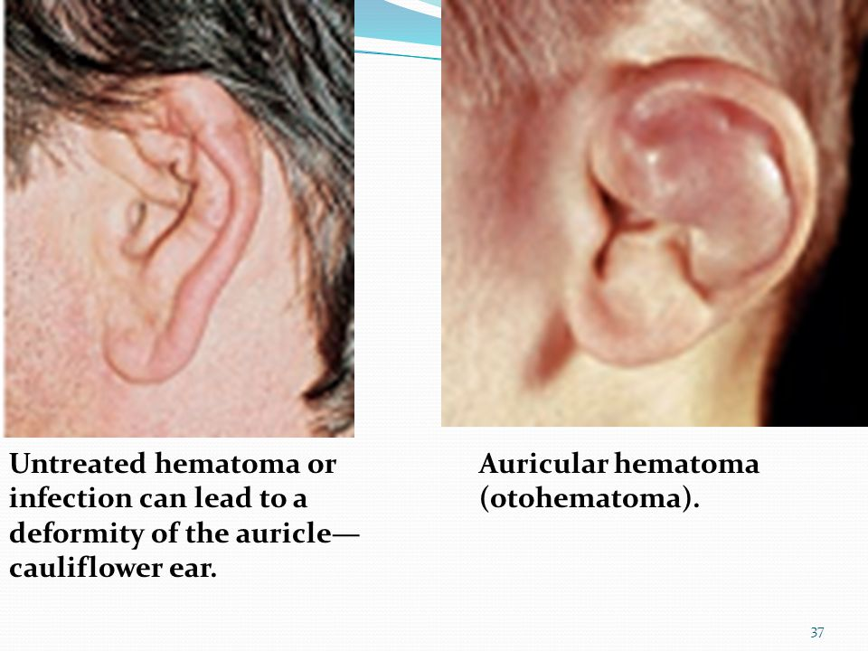 Untreated hematoma or infection can lead to a deformity of the auricle—cauliflower ear.