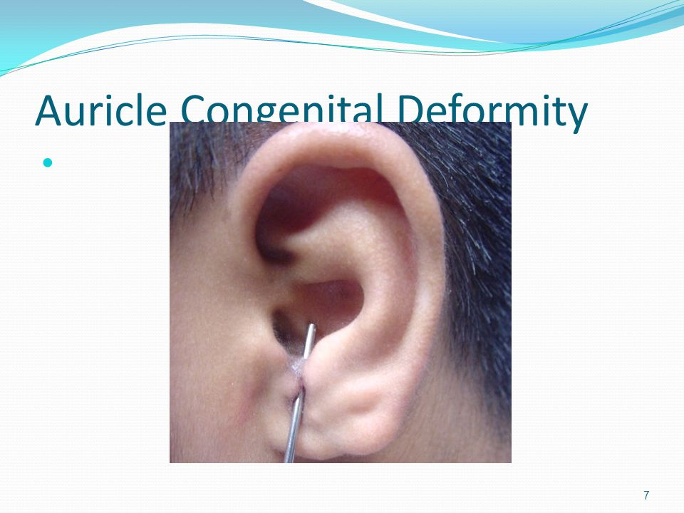 Auricle Congenital Deformity
