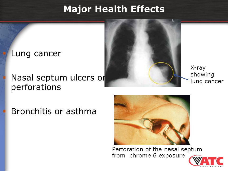 Major Health Effects Lung cancer Nasal septum ulcers or perforations