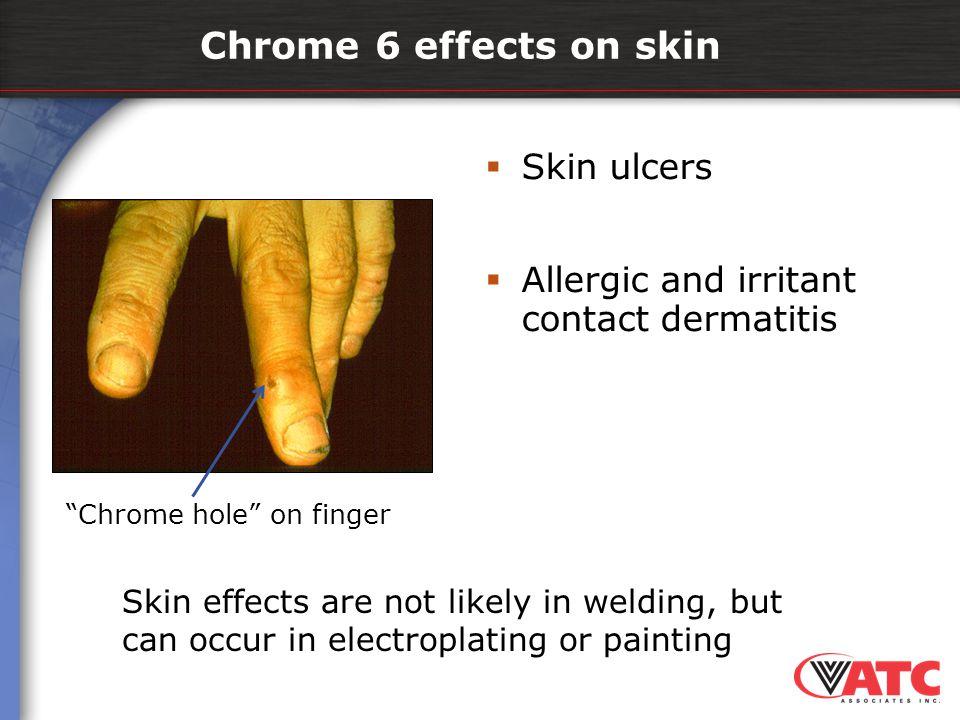 Chrome 6 effects on skin Skin ulcers