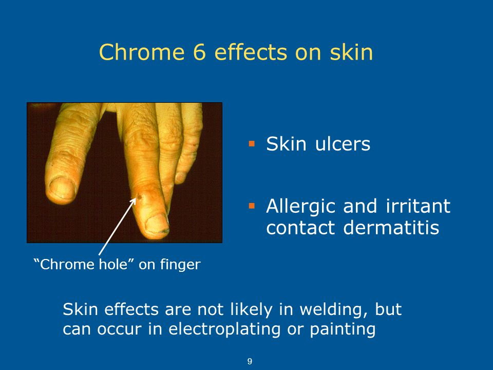 Chrome 6 effects on skin Skin ulcers