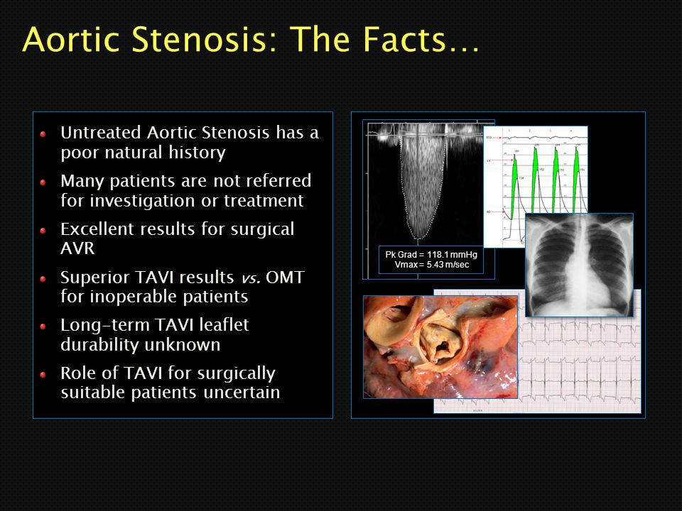 Aortic Stenosis: The Facts…