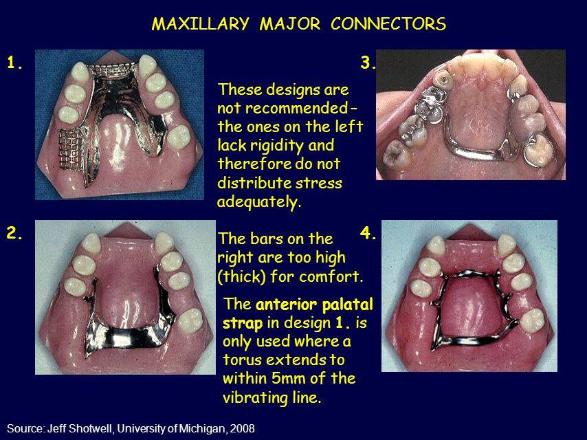 MAXILLARY MAJOR CONNECTORS