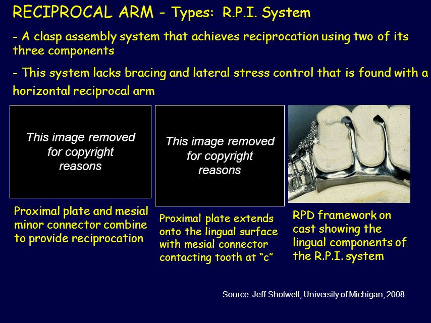 RECIPROCAL ARM - Types: R.P.I. System