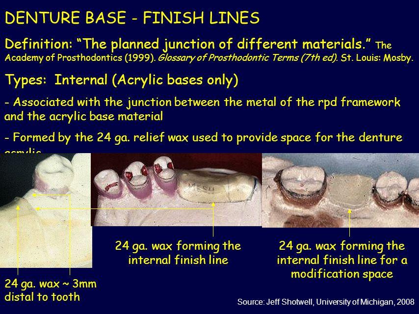 DENTURE BASE - FINISH LINES