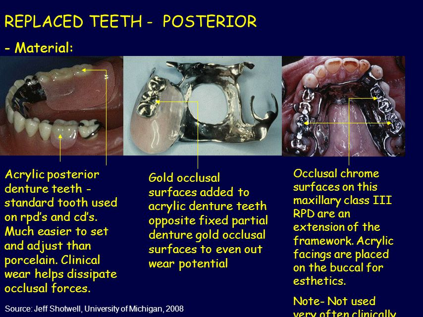 REPLACED TEETH - POSTERIOR