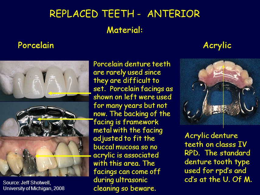 REPLACED TEETH - ANTERIOR