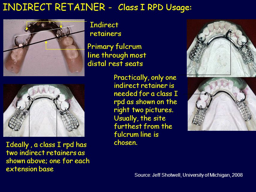 INDIRECT RETAINER - Class I RPD Usage: