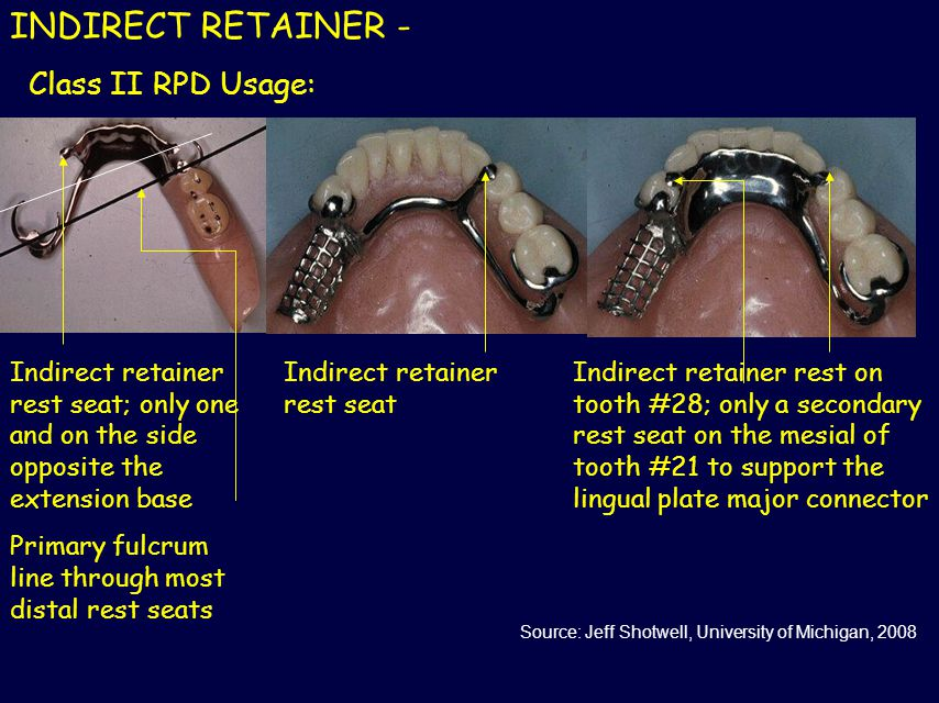 INDIRECT RETAINER - Class II RPD Usage: