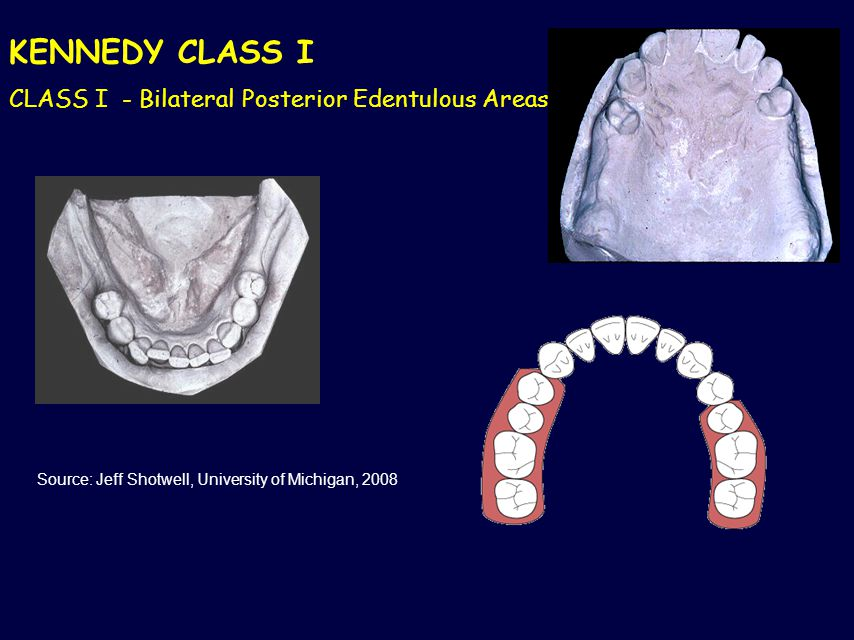 KENNEDY CLASS I CLASS I - Bilateral Posterior Edentulous Areas