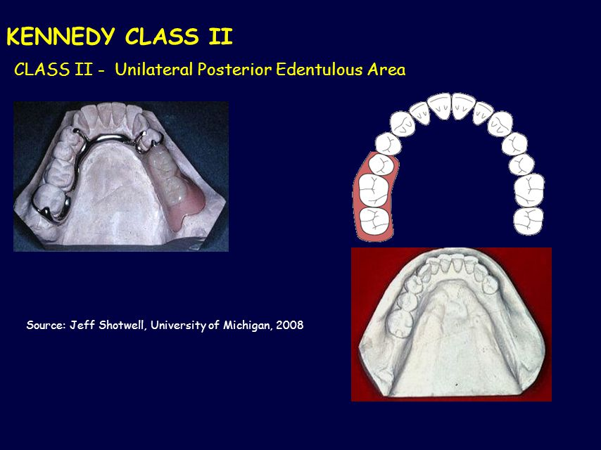 KENNEDY CLASS II CLASS II - Unilateral Posterior Edentulous Area