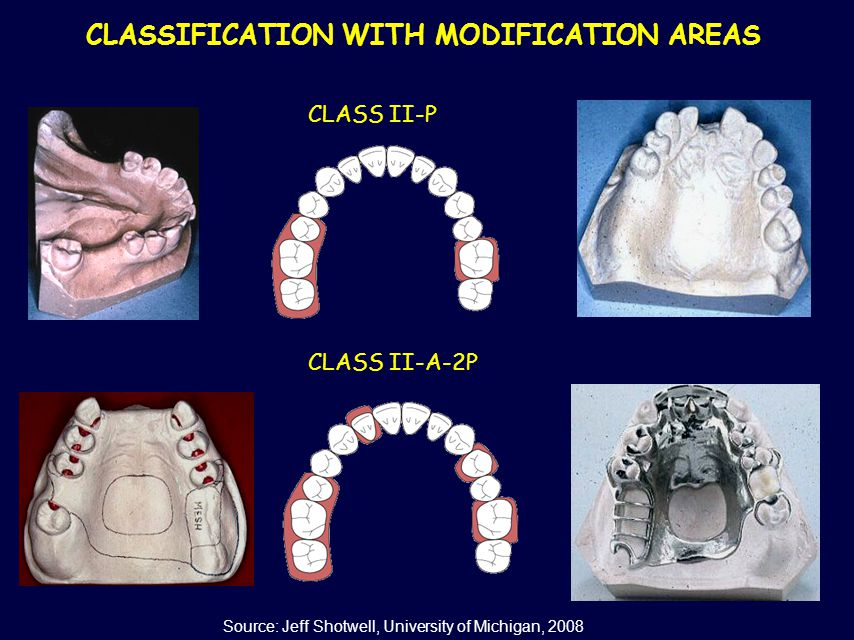 CLASSIFICATION WITH MODIFICATION AREAS